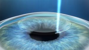 hoe ooglaseren